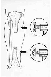 Mechanical treatment of spin-bone by half-spheric mills.
