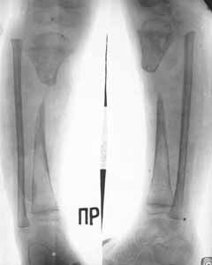 Defect of upper/third of shin-bone after hematogenous osteomyelitis.