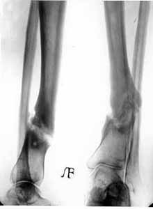 False joint of lower/third of shinbone.