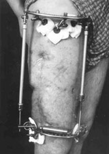 Patient in Ilisarov's apparatus.